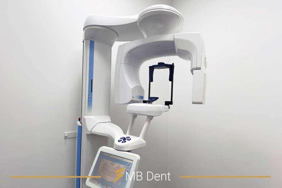 Digitalni dentalni rendgen, ortopan, 3D CBCT