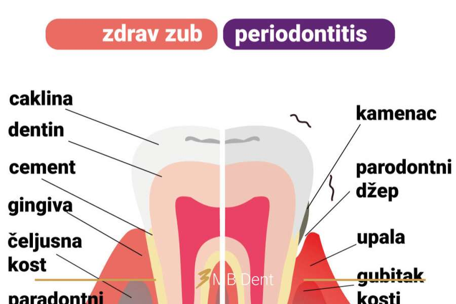 Kako se liječi parodontoza?