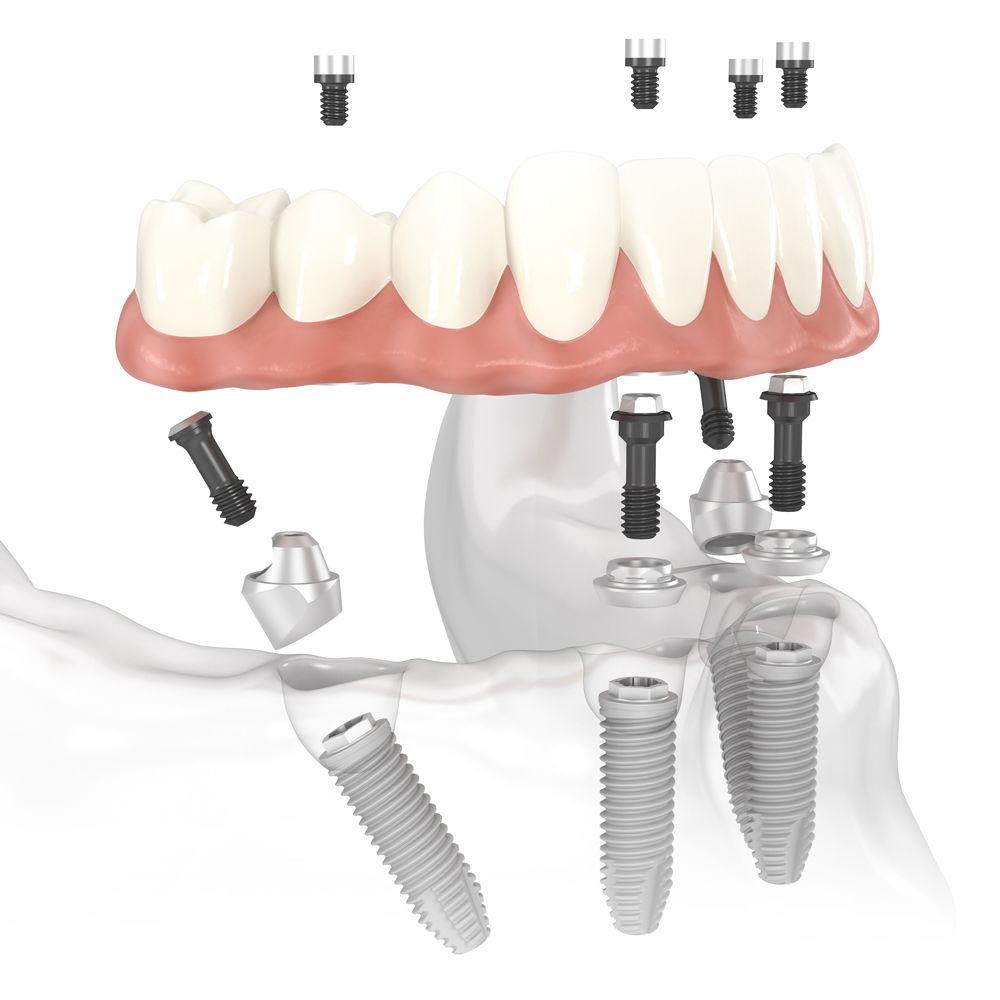 Zubni implantati MB Dent