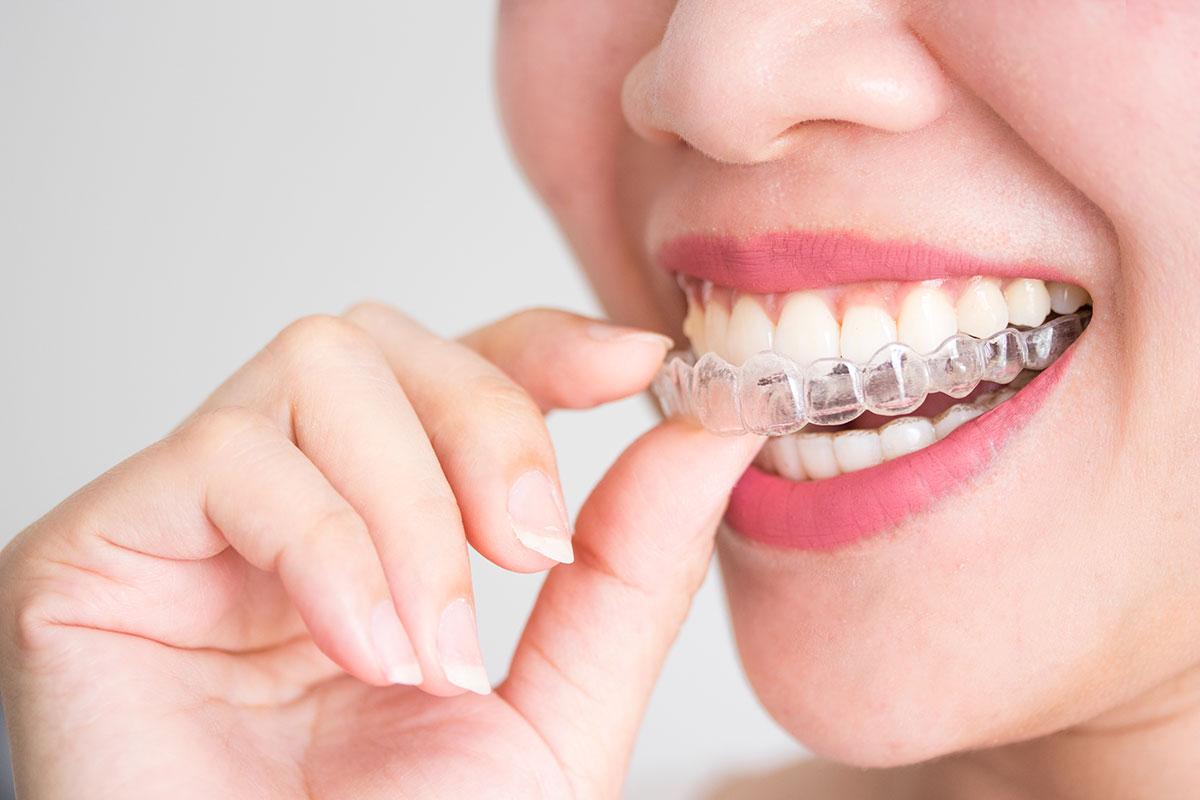 Što je ortodoncija? MB Dent